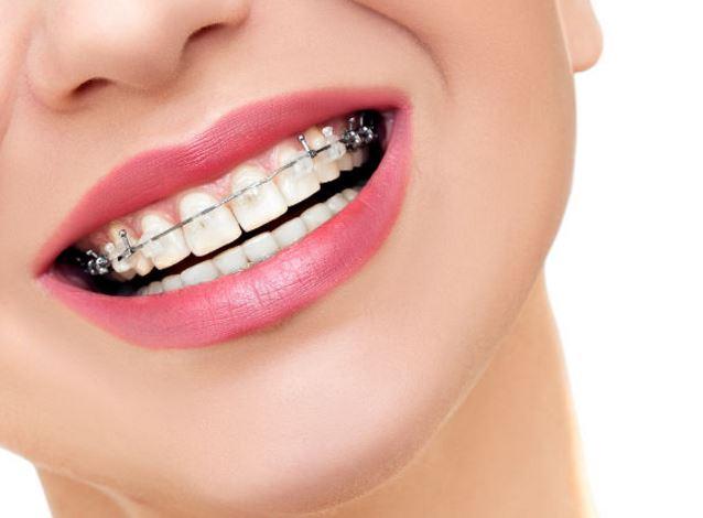 Aparate dentare de calitate